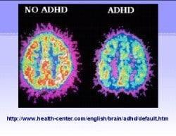 adhd-brein