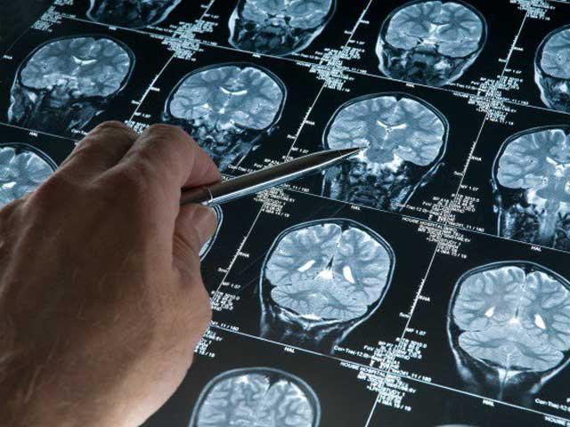big-pharma-vasten-brein