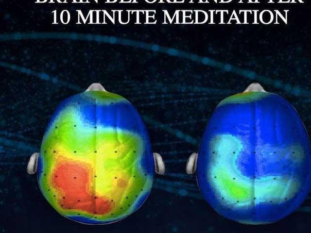 Neurologen hebben muziek ontdekt waardoor angst met 65 procent wordt verminderd (luister)