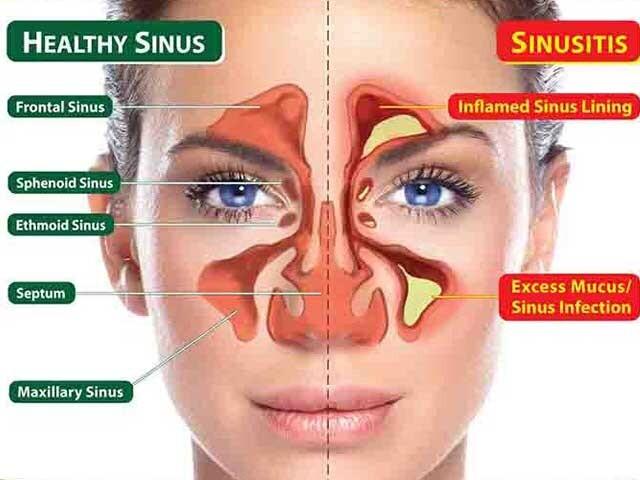 Hoe je in 1 minuut ernstig verstopte sinussen op natuurlijke wijze kunt openen
